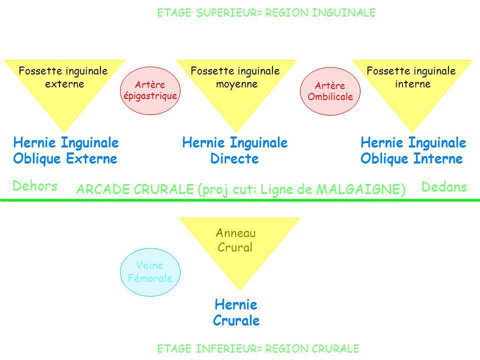 ETAGE SUPERIEUR= REGION INGUINALE ETAGE INFERIEUR= REGION CRURALE Artère épigastrique Artère Ombilicale ARCADE CRURALE (proj cut: Ligne de MALGAIGNE)