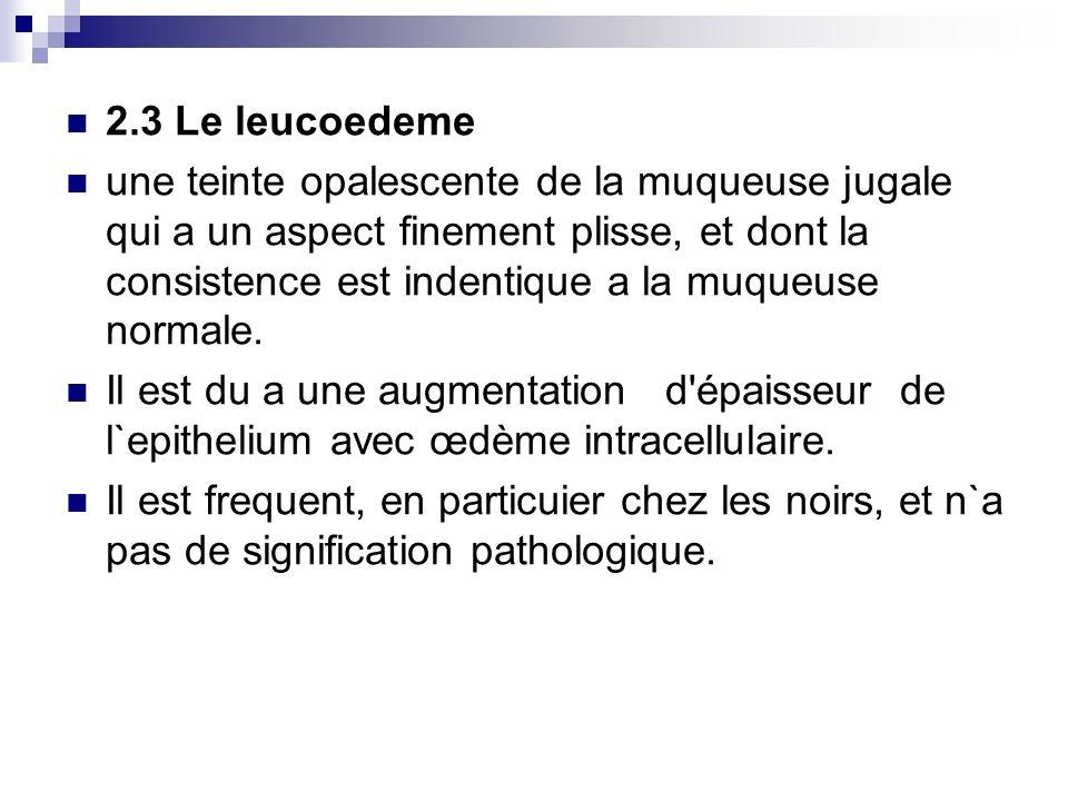 2.3 Le leucoedeme une teinte opalescente de la muqueuse jugale qui a un aspect finement plisse, et dont la consistence est indentique a la muqueuse no
