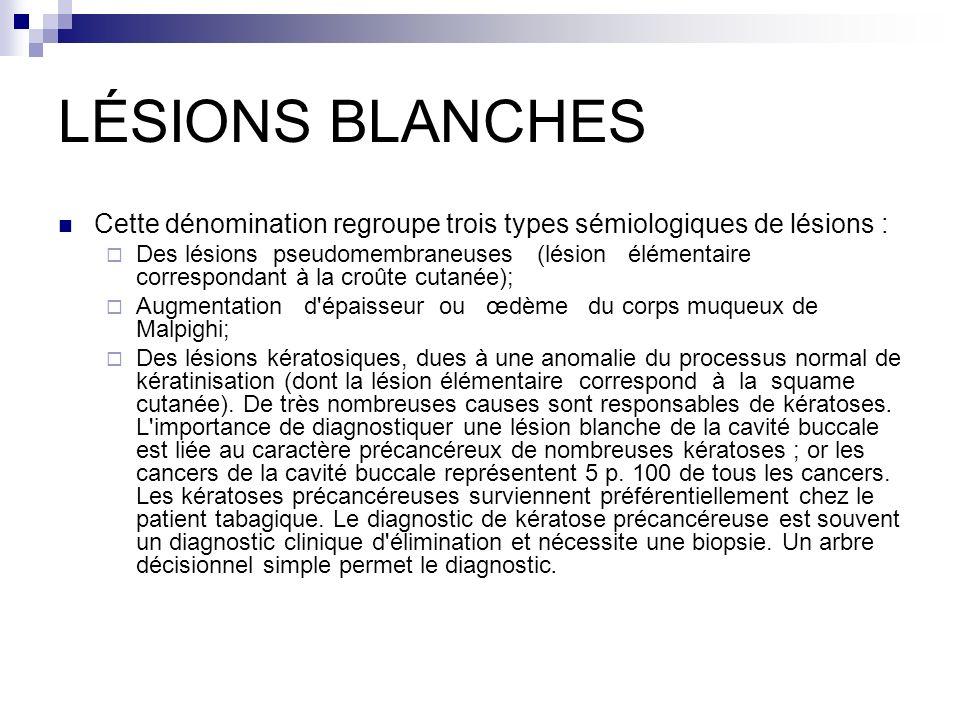 LÉSIONS BLANCHES Cette dénomination regroupe trois types sémiologiques de lésions : Des lésions pseudomembraneuses (lésion élémentaire correspondant à