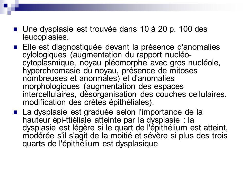 Une dysplasie est trouvée dans 10 à 20 p. 100 des leucoplasies. Elle est diagnostiquée devant la présence d'anomalies cylologiques (augmentation du ra