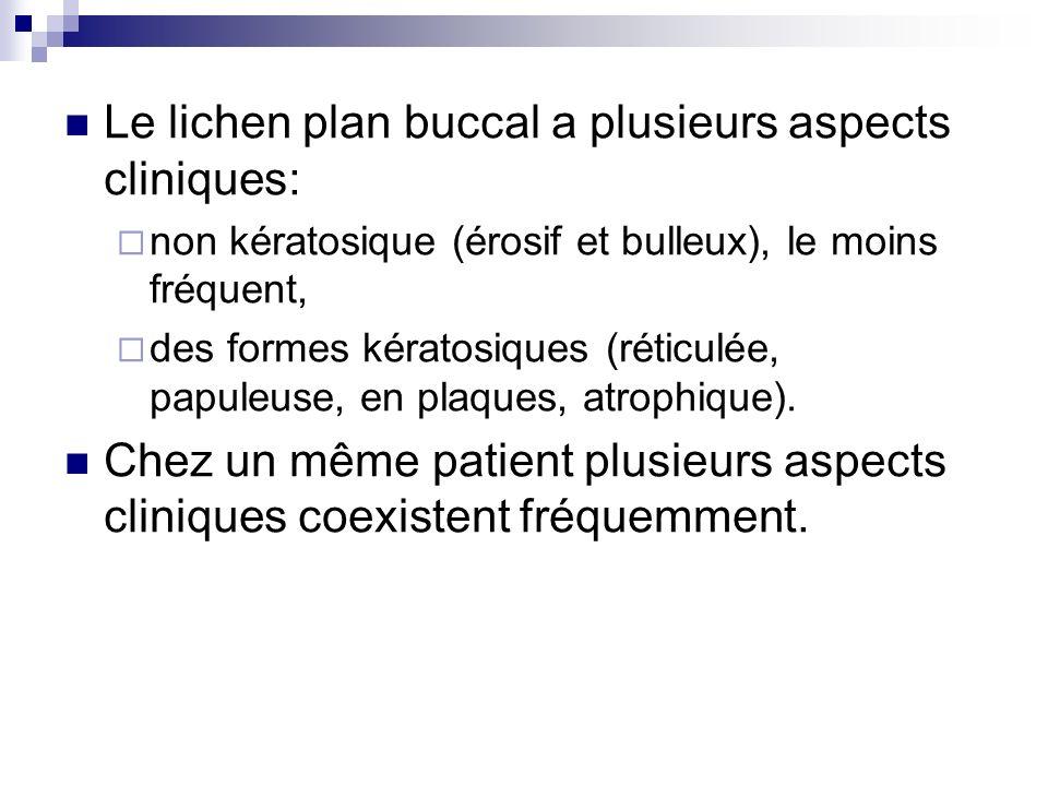 Le lichen plan buccal a plusieurs aspects cliniques: non kératosique (érosif et bulleux), le moins fréquent, des formes kératosiques (réticulée, papul