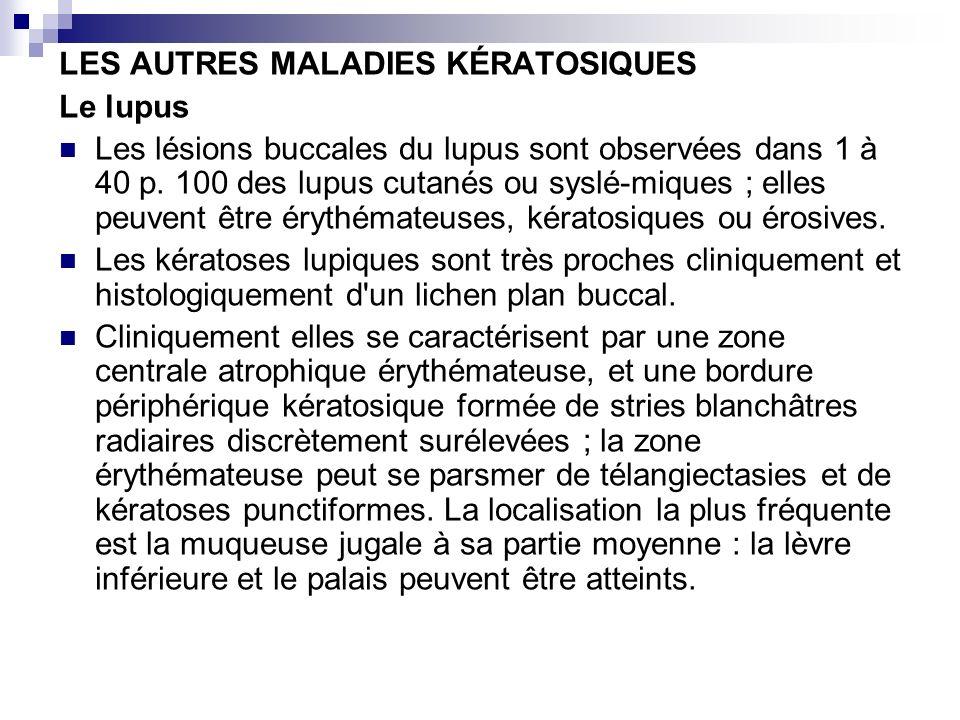 LES AUTRES MALADIES KÉRATOSIQUES Le lupus Les lésions buccales du lupus sont observées dans 1 à 40 p. 100 des lupus cutanés ou syslé-miques ; elles pe
