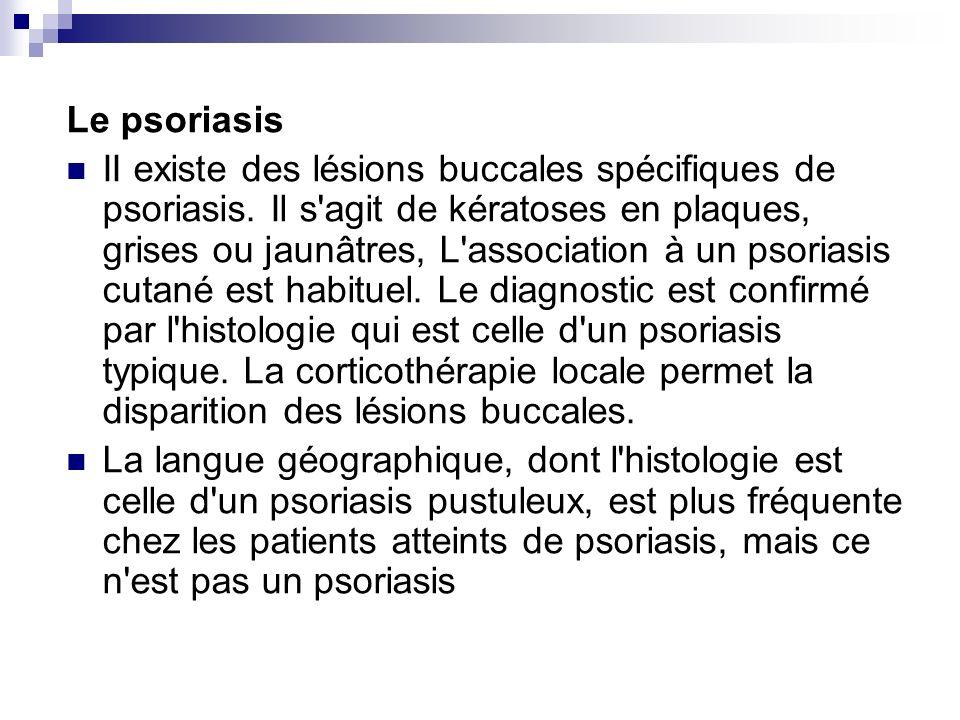 Le psoriasis II existe des lésions buccales spécifiques de psoriasis. Il s'agit de kératoses en plaques, grises ou jaunâtres, L'association à un psori