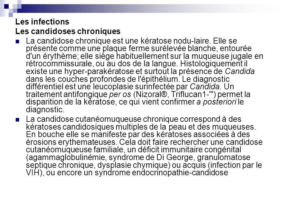 Les infections Les candidoses chroniques La candidose chronique est une kératose nodu-laire. Elle se présente comme une plaque ferme surélevée blanche