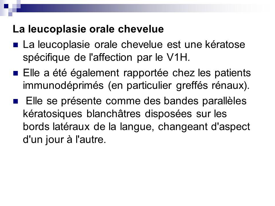 La leucoplasie orale chevelue La leucoplasie orale chevelue est une kératose spécifique de l'affection par le V1H. Elle a été également rapportée chez