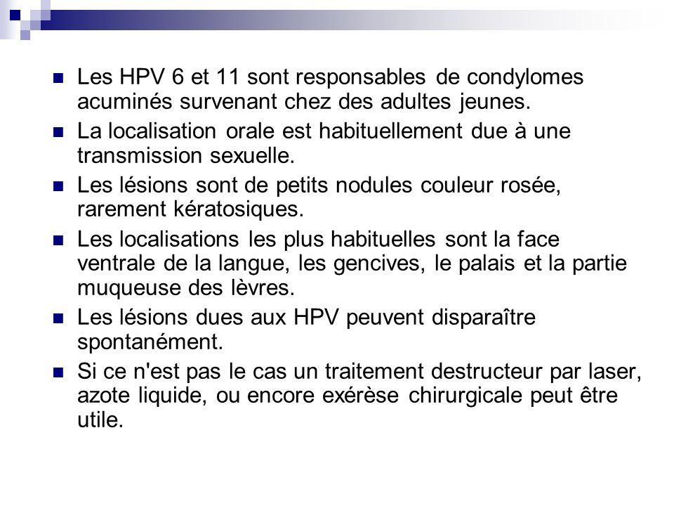 Les HPV 6 et 11 sont responsables de condylomes acuminés survenant chez des adultes jeunes. La localisation orale est habituellement due à une transmi