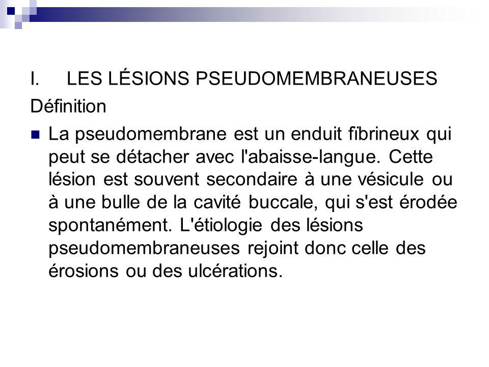 I. LES LÉSIONS PSEUDOMEMBRANEUSES Définition La pseudomembrane est un enduit fïbrineux qui peut se détacher avec l'abaisse-langue. Cette lésion est so