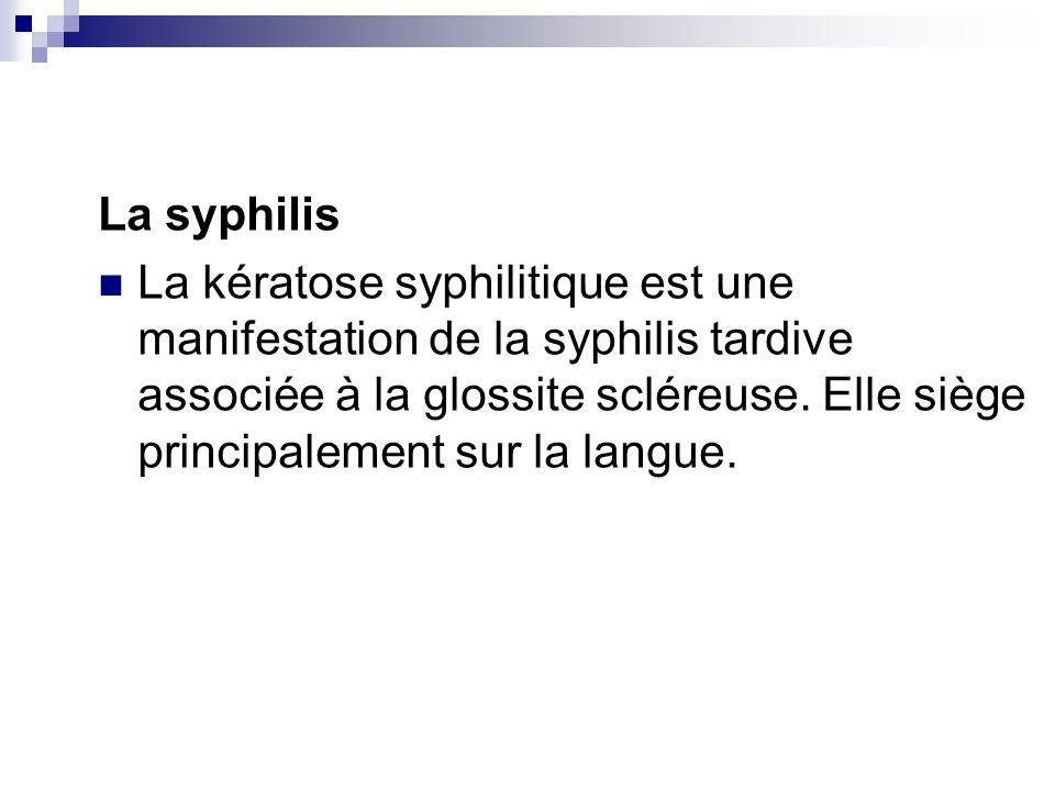 La syphilis La kératose syphilitique est une manifestation de la syphilis tardive associée à la glossite scléreuse. Elle siège principalement sur la l