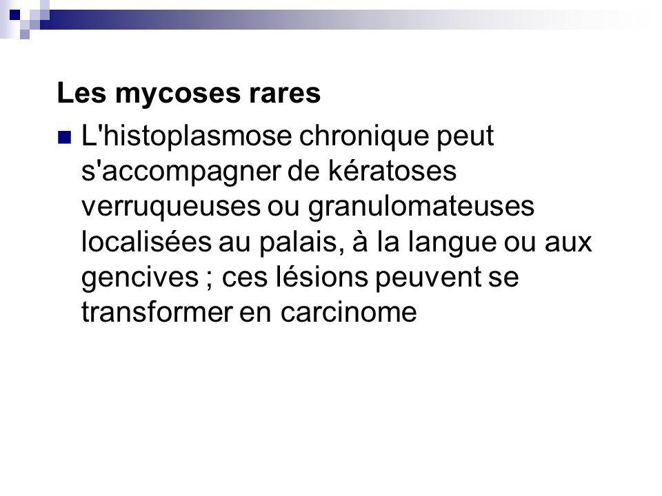 Les mycoses rares L'histoplasmose chronique peut s'accompagner de kératoses verruqueuses ou granulomateuses localisées au palais, à la langue ou aux g