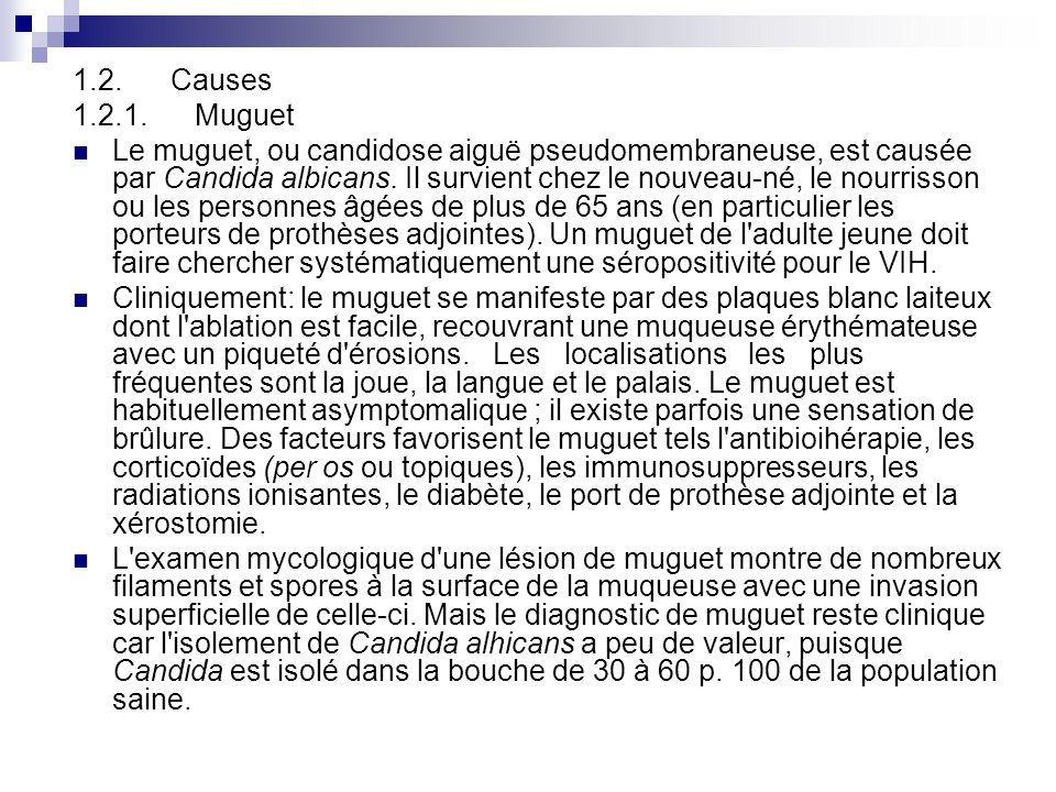 1.2. Causes 1.2.1. Muguet Le muguet, ou candidose aiguë pseudomembraneuse, est causée par Candida albicans. Il survient chez le nouveau-né, le nourris