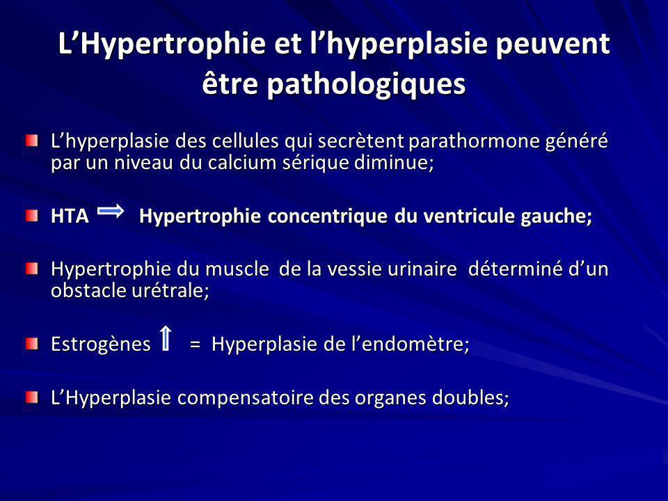 LHypertrophie et lhyperplasie peuvent être pathologiques Lhyperplasie des cellules qui secrètent parathormone généré par un niveau du calcium sérique