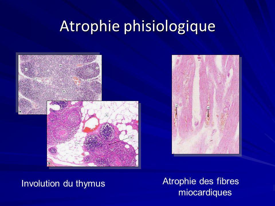 Atrophie phisiologique Involution du thymus Atrophie des fibres miocardiques