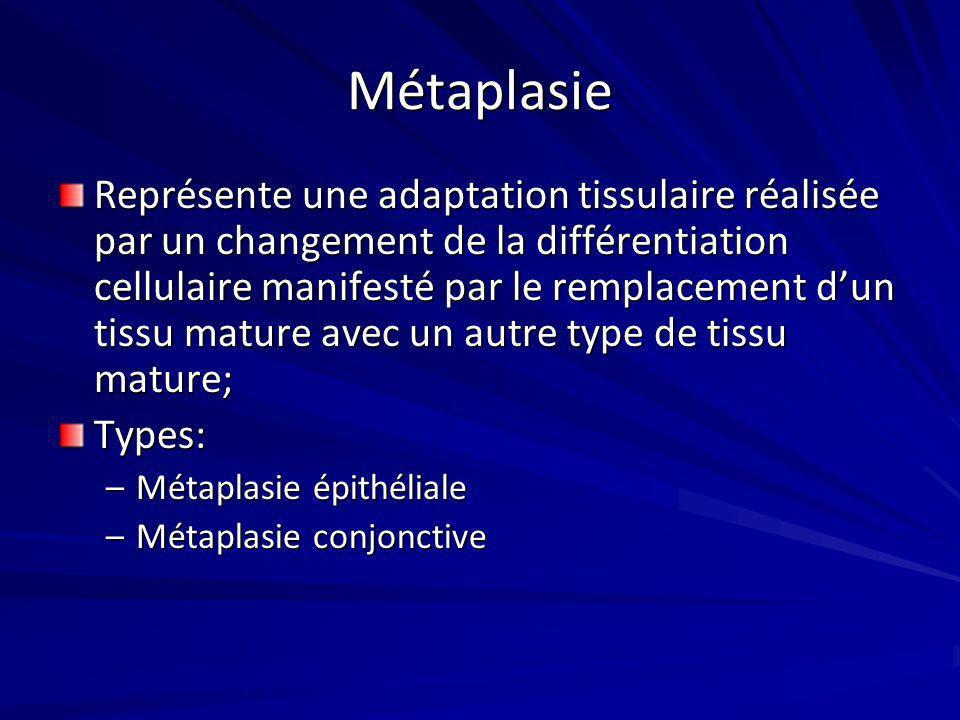 Métaplasie Représente une adaptation tissulaire réalisée par un changement de la différentiation cellulaire manifesté par le remplacement dun tissu ma