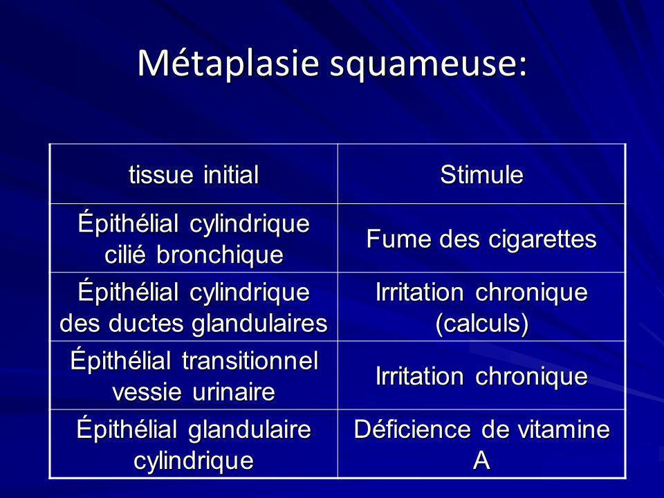 Métaplasie squameuse: tissue initial Stimule Épithélial cylindrique cilié bronchique Fume des cigarettes Épithélial cylindrique des ductes glandulaire