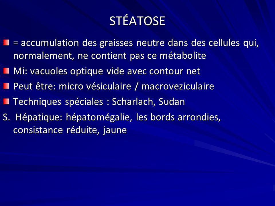 STÉATOSE = accumulation des graisses neutre dans des cellules qui, normalement, ne contient pas ce métabolite Mi: vacuoles optique vide avec contour n