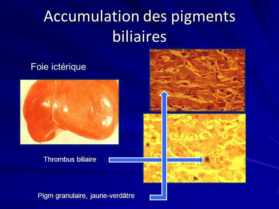 Accumulation des pigments biliaires Foie ictérique Thrombus biliaire Pigm granulaire, jaune-verdâtre
