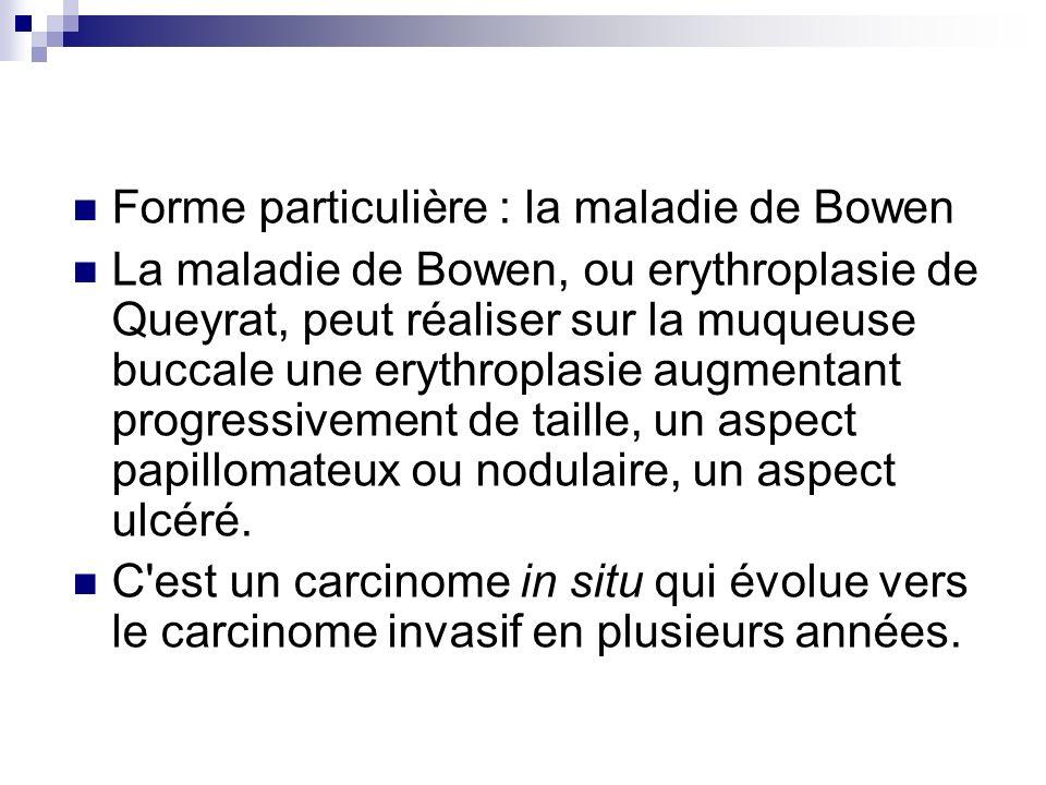 Forme particulière : la maladie de Bowen La maladie de Bowen, ou erythroplasie de Queyrat, peut réaliser sur la muqueuse buccale une erythroplasie aug