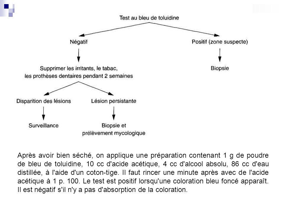 Après avoir bien séché, on applique une préparation contenant 1 g de poudre de bleu de toluidine, 10 cc d'acide acétique, 4 cc d'alcool absolu, 86 cc