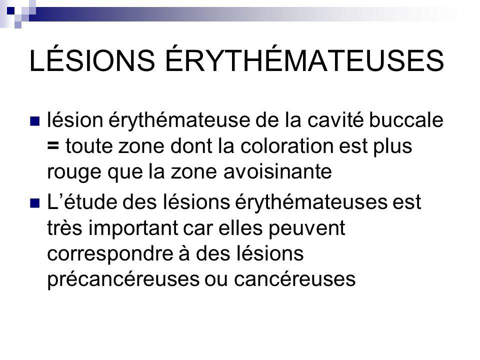 Lésions érythémateuses Erythroplasie Dysplasie Carcinome in situ (dont maladie de Bowen ou erythroplasie de Queyrat) Carcinome invasif Lésions érythémateuses d origine infectieuse Candidoses - muguet buccal, candidose chronique atrophique Histoplasmose, Tuberculose Maladies dermatologiques Lichen plan Lupus (érythémateux chronique systémique) Psoriasis Stomatite Stomatite érythémateuse simple Stomatite érythémato-pultacée Stomatite érosive Stomatite ulcérée Stomatite de cause locale (dentaire, prothétique) Stomatite due au tabac Stomatite hypertrophique