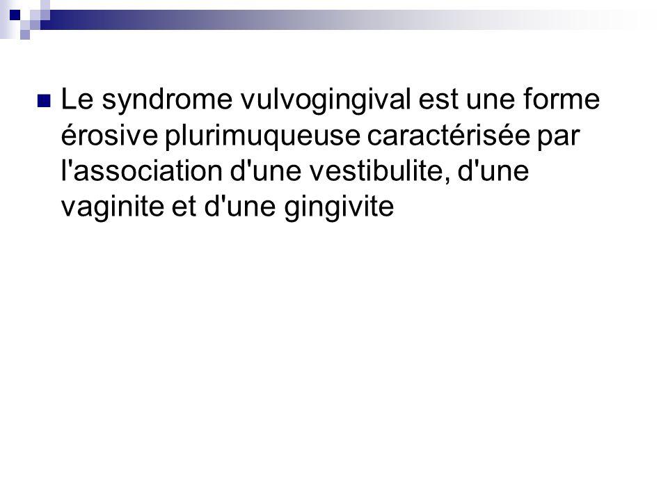 Le syndrome vulvogingival est une forme érosive plurimuqueuse caractérisée par l'association d'une vestibulite, d'une vaginite et d'une gingivite