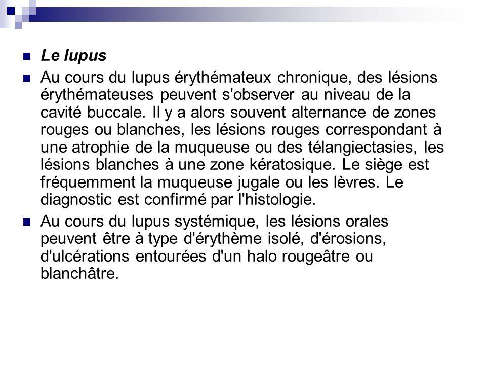 Le lupus Au cours du lupus érythémateux chronique, des lésions érythémateuses peuvent s'observer au niveau de la cavité buccale. Il y a alors souvent