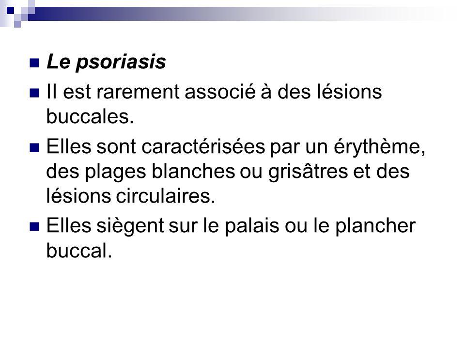 Le psoriasis II est rarement associé à des lésions buccales. Elles sont caractérisées par un érythème, des plages blanches ou grisâtres et des lésions
