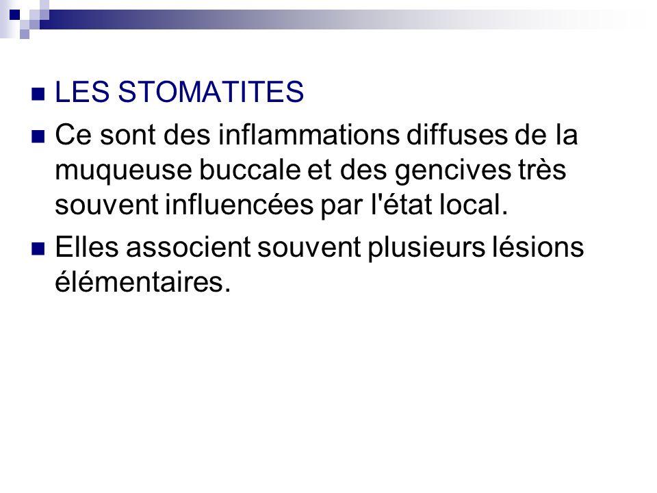 LES STOMATITES Ce sont des inflammations diffuses de la muqueuse buccale et des gencives très souvent influencées par l'état local. Elles associent so