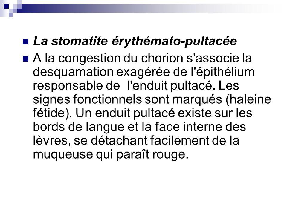 La stomatite érythémato-pultacée A la congestion du chorion s'associe la desquamation exagérée de l'épithélium responsable de l'enduit pultacé. Les si
