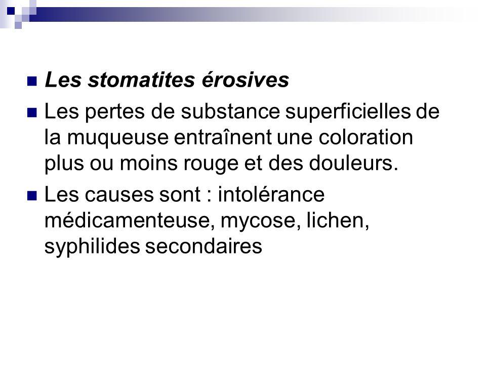 Les stomatites érosives Les pertes de substance superficielles de la muqueuse entraînent une coloration plus ou moins rouge et des douleurs. Les cause