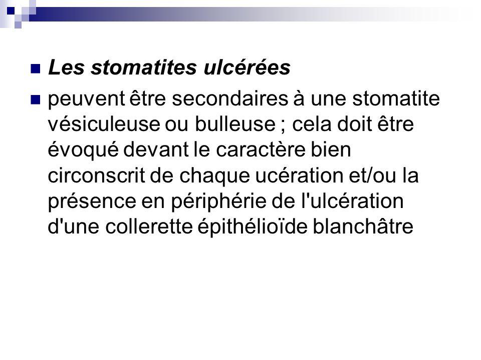 Les stomatites ulcérées peuvent être secondaires à une stomatite vésiculeuse ou bulleuse ; cela doit être évoqué devant le caractère bien circonscrit