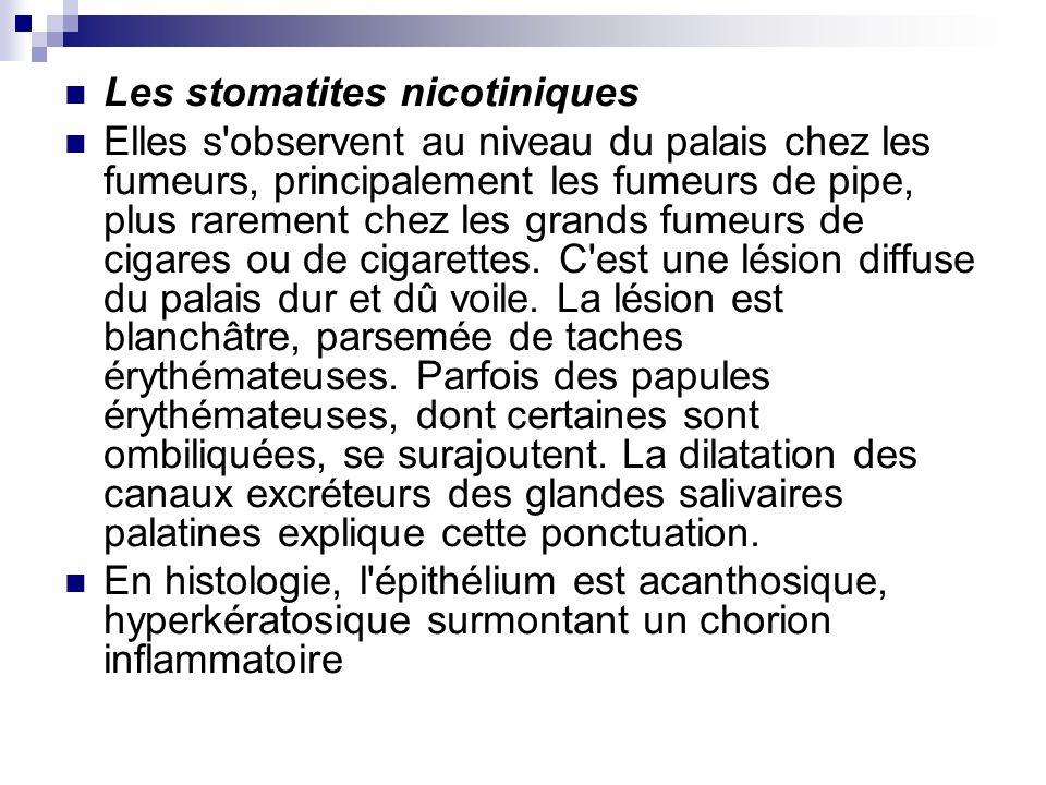 Les stomatites nicotiniques Elles s'observent au niveau du palais chez les fumeurs, principalement les fumeurs de pipe, plus rarement chez les grands