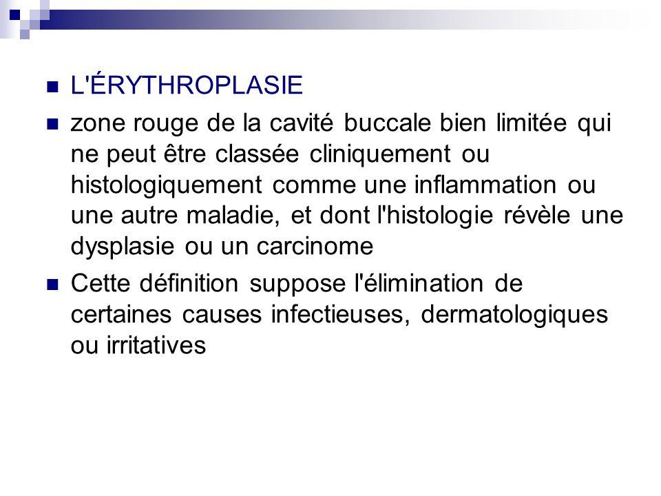 Aspects cliniques - 3 formes cliniques: la forme homogène correspondant à une plaque uniformément érythémateuse, lisse ou avec une texture veloutée.
