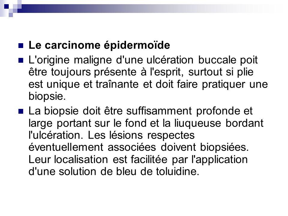 Le carcinome épidermoïde L'origine maligne d'une ulcération buccale poit être toujours présente à l'esprit, surtout si plie est unique et traînante et
