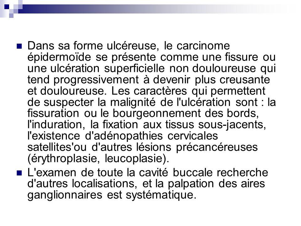 Dans sa forme ulcéreuse, le carcinome épidermoïde se présente comme une fissure ou une ulcération superficielle non douloureuse qui tend progressiveme