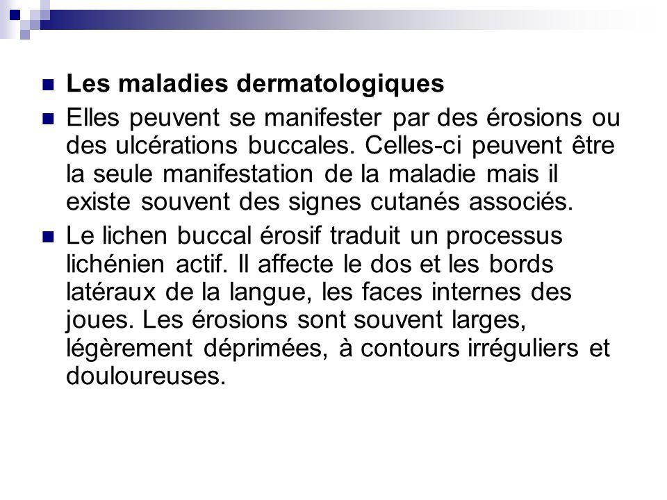Les maladies dermatologiques Elles peuvent se manifester par des érosions ou des ulcérations buccales. Celles-ci peuvent être la seule manifestation d