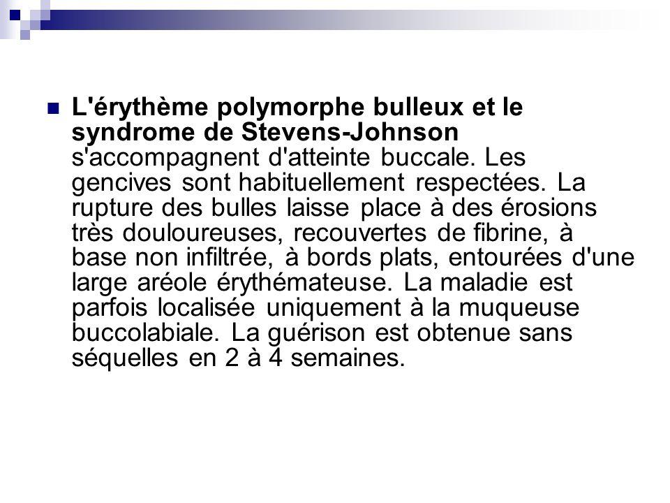 L'érythème polymorphe bulleux et le syndrome de Stevens-Johnson s'accompagnent d'atteinte buccale. Les gencives sont habituellement respectées. La rup
