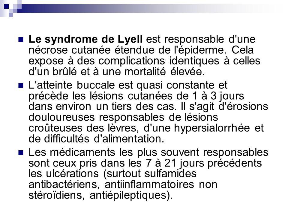 Le syndrome de Lyell est responsable d'une nécrose cutanée étendue de l'épiderme. Cela expose à des complications identiques à celles d'un brûlé et à