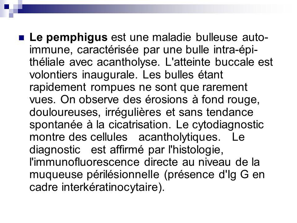 Le pemphigus est une maladie bulleuse auto- immune, caractérisée par une bulle intra-épi- théliale avec acantholyse. L'atteinte buccale est volontiers