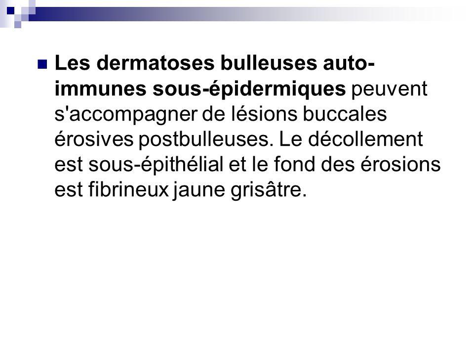 Les dermatoses bulleuses auto- immunes sous-épidermiques peuvent s'accompagner de lésions buccales érosives postbulleuses. Le décollement est sous-épi