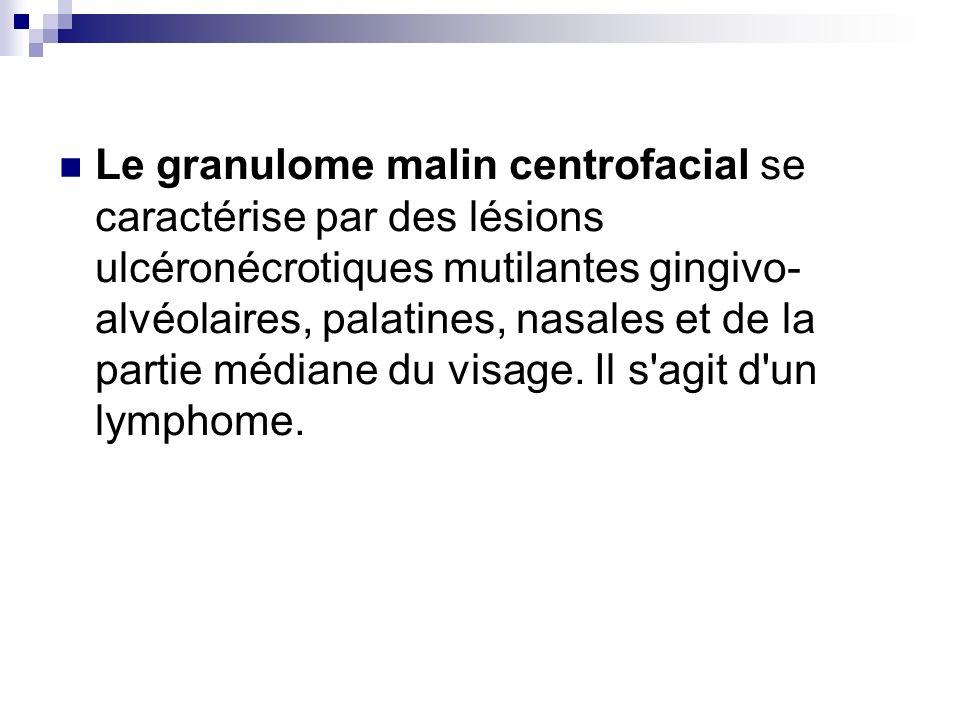Le granulome malin centrofacial se caractérise par des lésions ulcéronécrotiques mutilantes gingivo- alvéolaires, palatines, nasales et de la partie