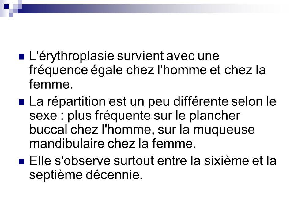 L'érythroplasie survient avec une fréquence égale chez l'homme et chez la femme. La répartition est un peu différente selon le sexe : plus fréquente s