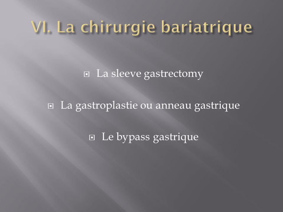 La sleeve gastrectomy La gastroplastie ou anneau gastrique Le bypass gastrique