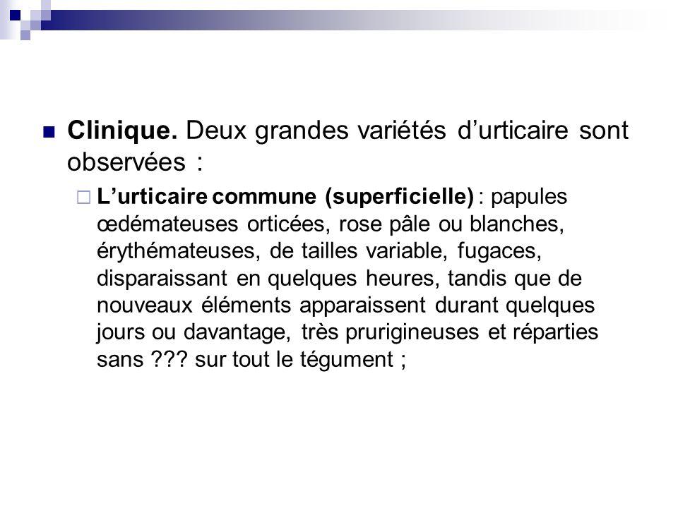 Clinique. Deux grandes variétés durticaire sont observées : Lurticaire commune (superficielle) : papules œdémateuses orticées, rose pâle ou blanches,