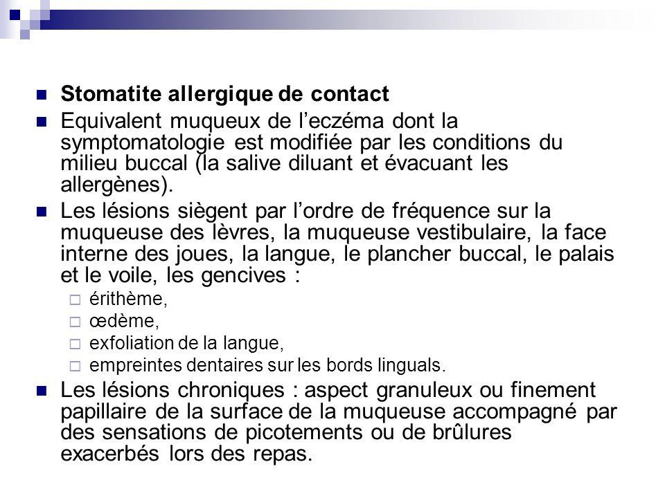 Stomatite allergique de contact Equivalent muqueux de leczéma dont la symptomatologie est modifiée par les conditions du milieu buccal (la salive dilu