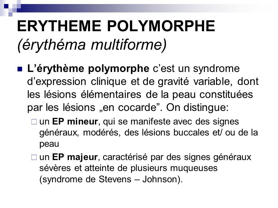 ERYTHEME POLYMORPHE (érythéma multiforme) Lérythème polymorphe cest un syndrome dexpression clinique et de gravité variable, dont les lésions élémenta