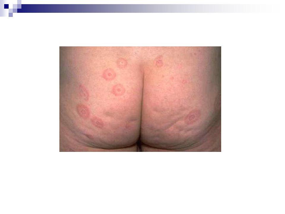 Dautres lésions cutanées sont constituées par : des maculopapules érythémateuse des lésions bulleuses siégeant au centre dune cocarde ou sur une macule érythémateuse.