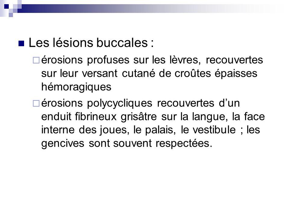 Les lésions buccales : érosions profuses sur les lèvres, recouvertes sur leur versant cutané de croûtes épaisses hémoragiques érosions polycycliques r