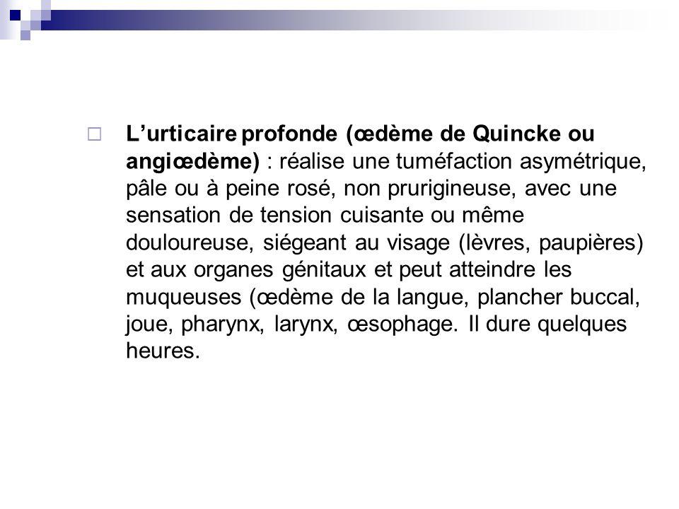 Lurticaire profonde (œdème de Quincke ou angiœdème) : réalise une tuméfaction asymétrique, pâle ou à peine rosé, non prurigineuse, avec une sensation