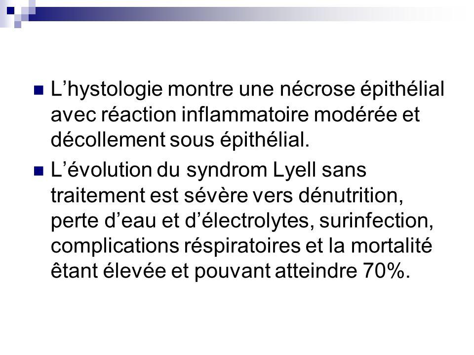 Lhystologie montre une nécrose épithélial avec réaction inflammatoire modérée et décollement sous épithélial. Lévolution du syndrom Lyell sans traitem