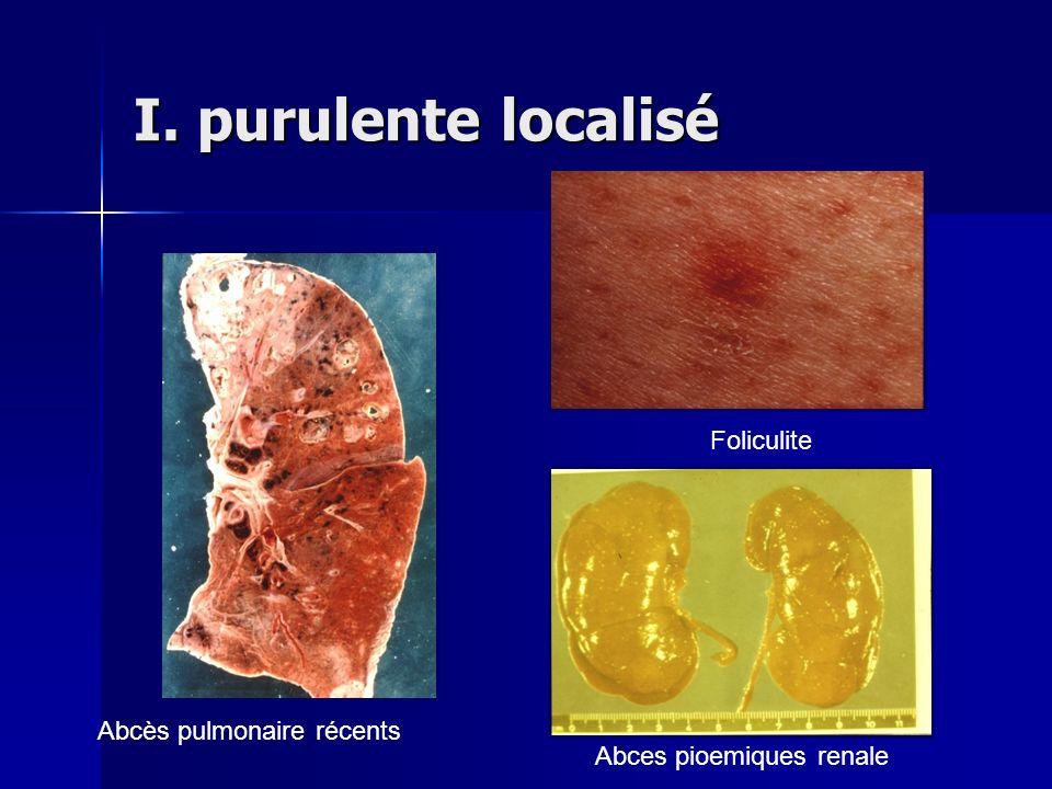 I. purulente localisé Abces pioemiques renale Abcès pulmonaire récents Foliculite